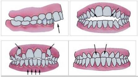 ortodontie_0